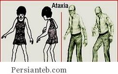 بیماری آتاکسی