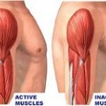 بیماری آتروفی عضلانی: علائم، درمان و پیشگیری
