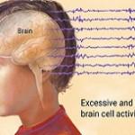 بیماری آبسنس (صرع): علائم، درمان و پیشگیری