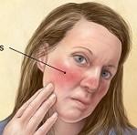 بیماری آکنه روزاسه: علائم، درمان و پیشگیری
