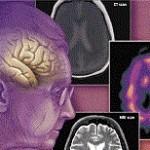 بیماری آمنزی (فراموشی): علائم، درمان و پیشگیری