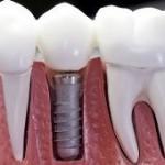 اطلاعات مفید از ایمپلنت دندان