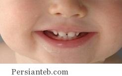 لق شدن دندان