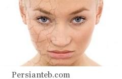 شفاف کردن پوست