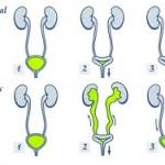 بیماری بازگشت محتویات مثانه به حالب (ریفلاکس مثانه): علائم، درمان و پیشگیری
