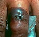 بیماری آنتراکس (سیاه زخم): علائم، درمان و پیشگیری