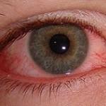 آشنایی با انواع سوختگی چشم و اقدامات اولیه پس از سوختگی!