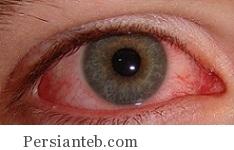 سوختگی چشم