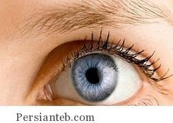 جراحی تغییر رنگ چشم