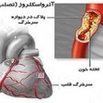 بیماری آترواسکلروزیس (تصلب شرایین): علائم، درمان و پیشگیری