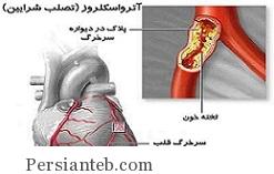 بیماری آترواسکلروزیس