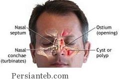 تومور در بینی