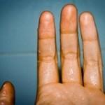 دلایل عرق کردن دست و راه درمان آن