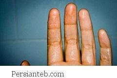 عرق کردن دست