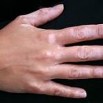 بیماری برص (ویتیلیگو): علائم، درمان و پیشگیری