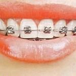 آیا می توان از بی نظمی در رویش دندان های دائمی جلوگیری کرد؟