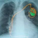 بیماری برادیکاردی (کاهش ضربان قلب): علائم، درمان و پیشگیری