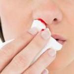 خونریزی بینی در دوران بارداری نشانه چیست؟