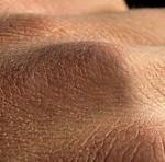 چند توصیه کوتاه و مفید طب سنتی برای پوست های خشک