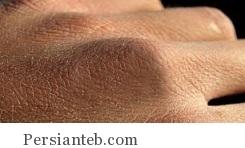 پوست های خشک