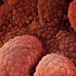 پایین آوردن ریسک ابتلا به سرطان