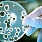 بیماری بروسلوز (تب مالت): علائم، درمان و پیشگیری