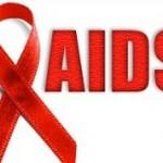 آشنایی با علائم دهانی ایدز
