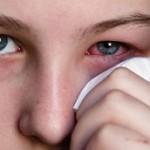 علت عفونت چشم و راههای پیشگیری از آن