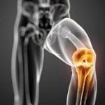 روش های مفید برای تسکین درد آرتروز