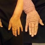 درمان بیماری لنف آدم با این ۵ راهکار