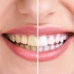 مواد غذایی که باعث زردی دندان ها می شود