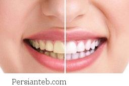 زردی دندان