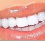 سوال و جواب های مرتبط با دندان – سری۲