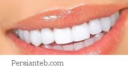 جواب های مرتبط با دندان