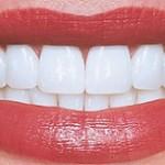 سوال و جواب های مرتبط با دندان – سری۱