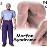 مقاله ای جالب درباره بیماری مارفان+ علت این بیماری!