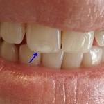 روی دندان هایتان لکه سفید دارید؟ راه حل اینجاست!