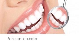 جلوگیری از پوسیدگی دندان