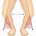 آیا پای پرانتزی درمان می شود؟