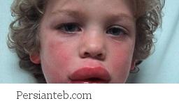 علائم بیماری خطرناک آنافیلاکسی را بشناسید!