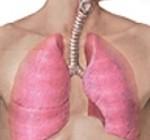 ۷ آماری که باید در مورد سرطان ریه بدانید