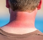 بیماری ای که با آفتاب تشدید می شود