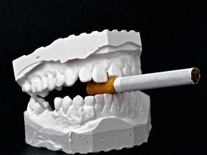 زشت شدن دندان ها