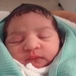 اطلاعاتی درخصوص سندروم سرتخت نوزاد