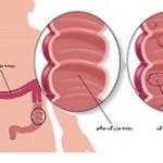 ۱۰ علت به ظاهر ساده برای تشخیص سرطان روده بزرگ
