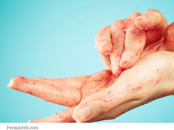 نرم کردن پوست دست