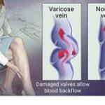 موثرترین تاکتیک های درمانی برای معضل واریس