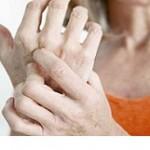 بیمارانی که از آرتریت رنج می برند چه بخورند بهتر است؟