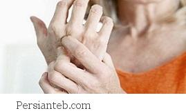 بیمارانی که از آرتریت رنج می برند
