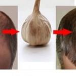 بهترین درمان بیماری قارچی پوست سر چیست؟!